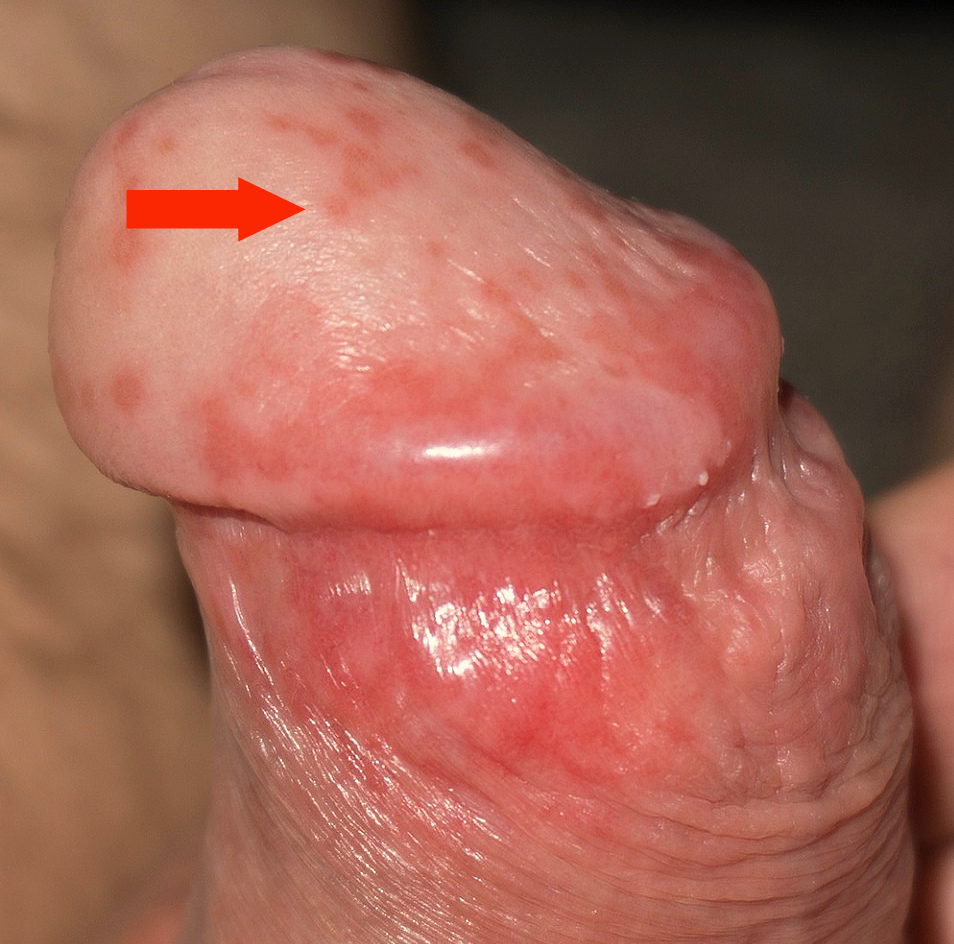 Testicle Pain